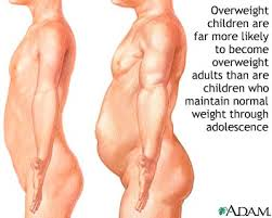 Causes of Adolescent Obesity