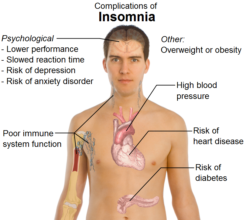 insomnia research paper | best sale🔥 | if you want to take care of your health insomnia research paper your health is important check price .