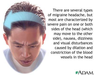migraines research paper